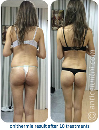 ionithermie-body-slimming-cellulite-treatment-result